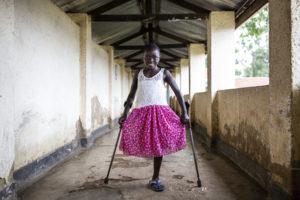 Kelvine verlor nach einer Rebellenattacke ein Bein. Viel Unterstützung lässt sie wieder lächelnd nach vorne blicken. Foto: © Patrick Meinhardt / HI